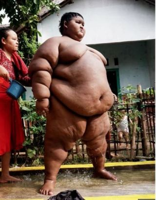 After Losing More Than 30 Stone, World's Fattest Boy Shows Off Incredible Body Transformation