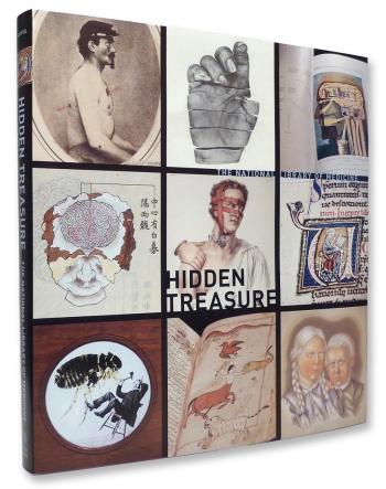 Hidden Treasure: Ten Centuries of Rare Archival Images Visualizing the Body