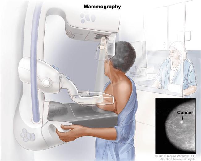2D乳房造影