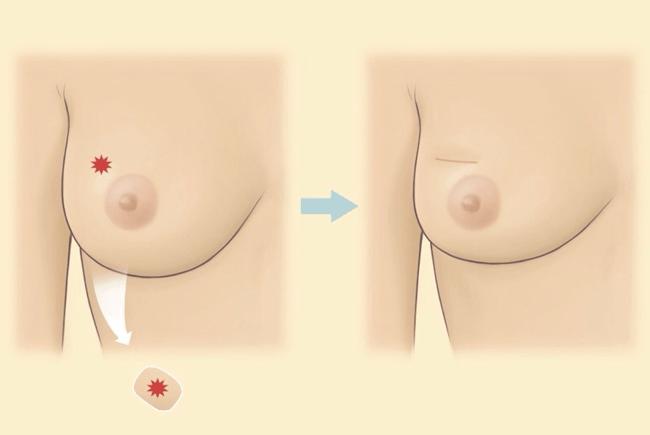 保留乳房手術