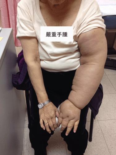 乳癌淋巴水腫