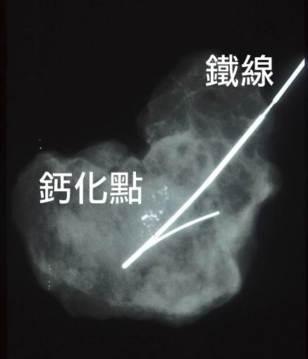 乳房鈣化點