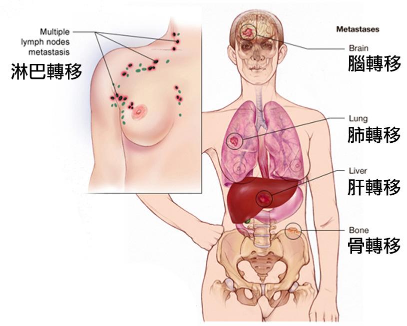 乳癌復發轉移
