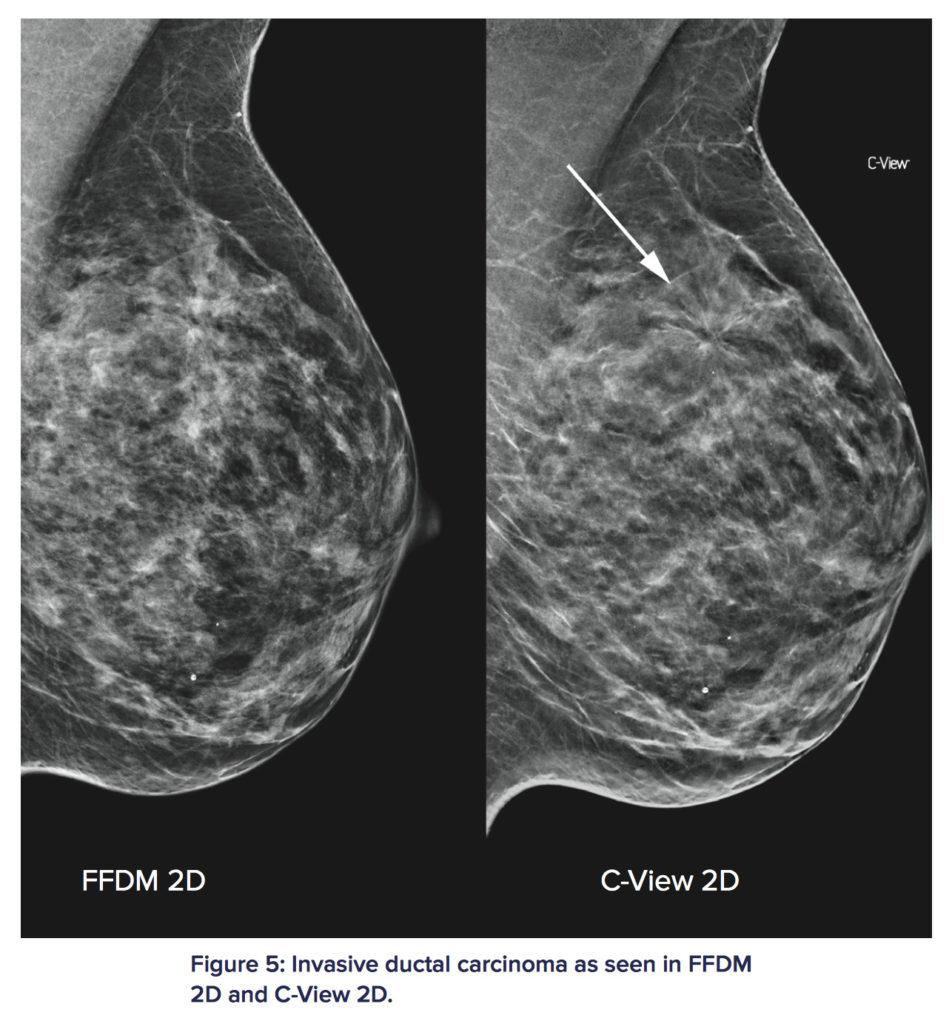 3D立體乳房造影