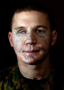 Marine Lance Cpl. William Kyle Carpenter at the Walter Reed National Military Medical Center in Bethesda, Md., on Jan. 12, 2012. Daniel A. Wetzel/U.S. Marine Corps
