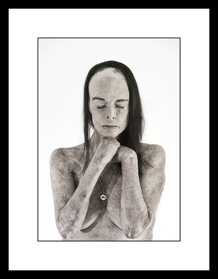 "The 2017 National Photographic Portrait Prize: - Canberra - ""The Skin I'm In II) - Carol Meyer - by Brian Cassey"