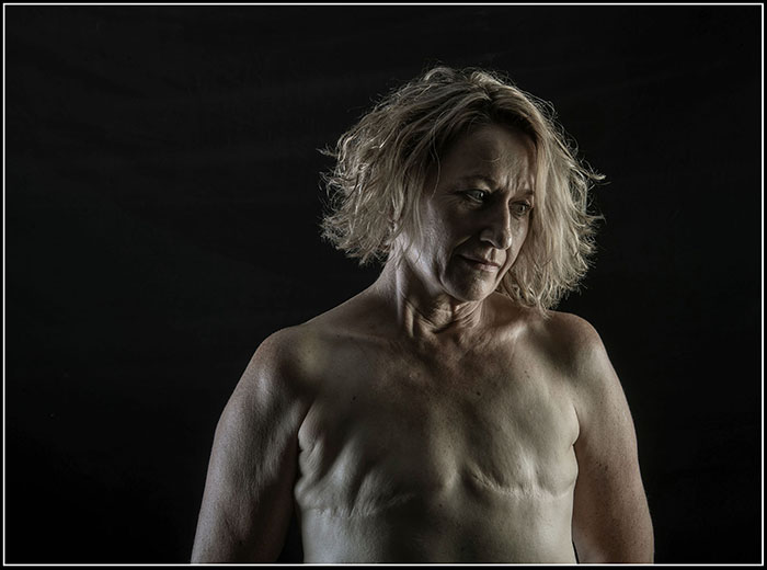 'Kate - Waiting For Her New Breasts' - Finalist - Percival Photographic Portrait Prize 2020 - image by Brian Cassey
