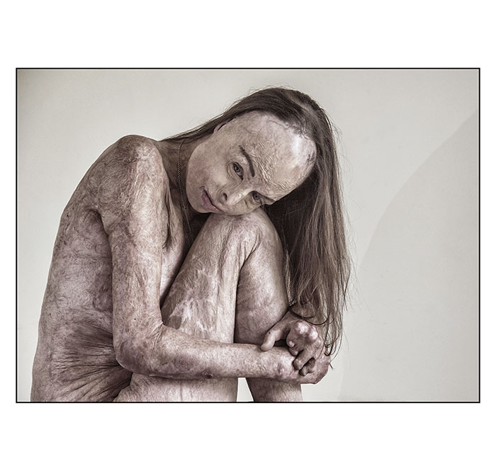 Portrait of Humanity - 'The Skin I'm In' - shortlisted - by Brian Cassey