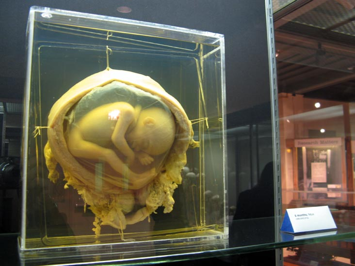 Fetus, 6 Months, From a Single Cell Exhibit, National Museum of Health and Medicine, Walter Reed Army Medical Center, 6900 Georgia Avenue NW, Washington, D.C.
