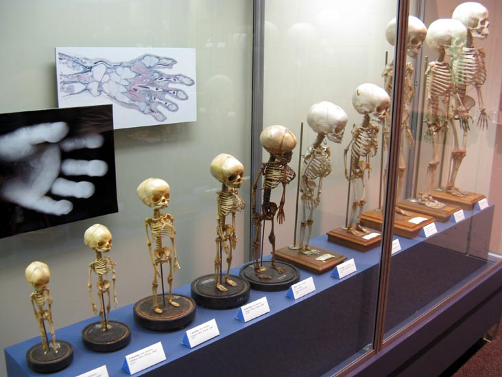 Fetal Skeletons, From a Single Cell Exhibit, National Museum of Health and Medicine, Walter Reed Army Medical Center, 6900 Georgia Avenue NW, Washington, D.C.