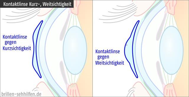 Kontaktlinse - Unterschied zwischen kurz- und weitsichtig