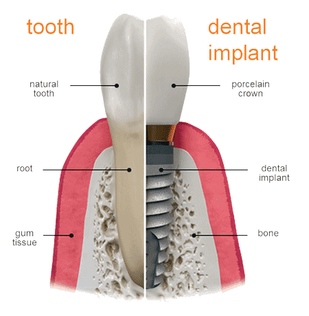 diagram of a dental implant and a tooth