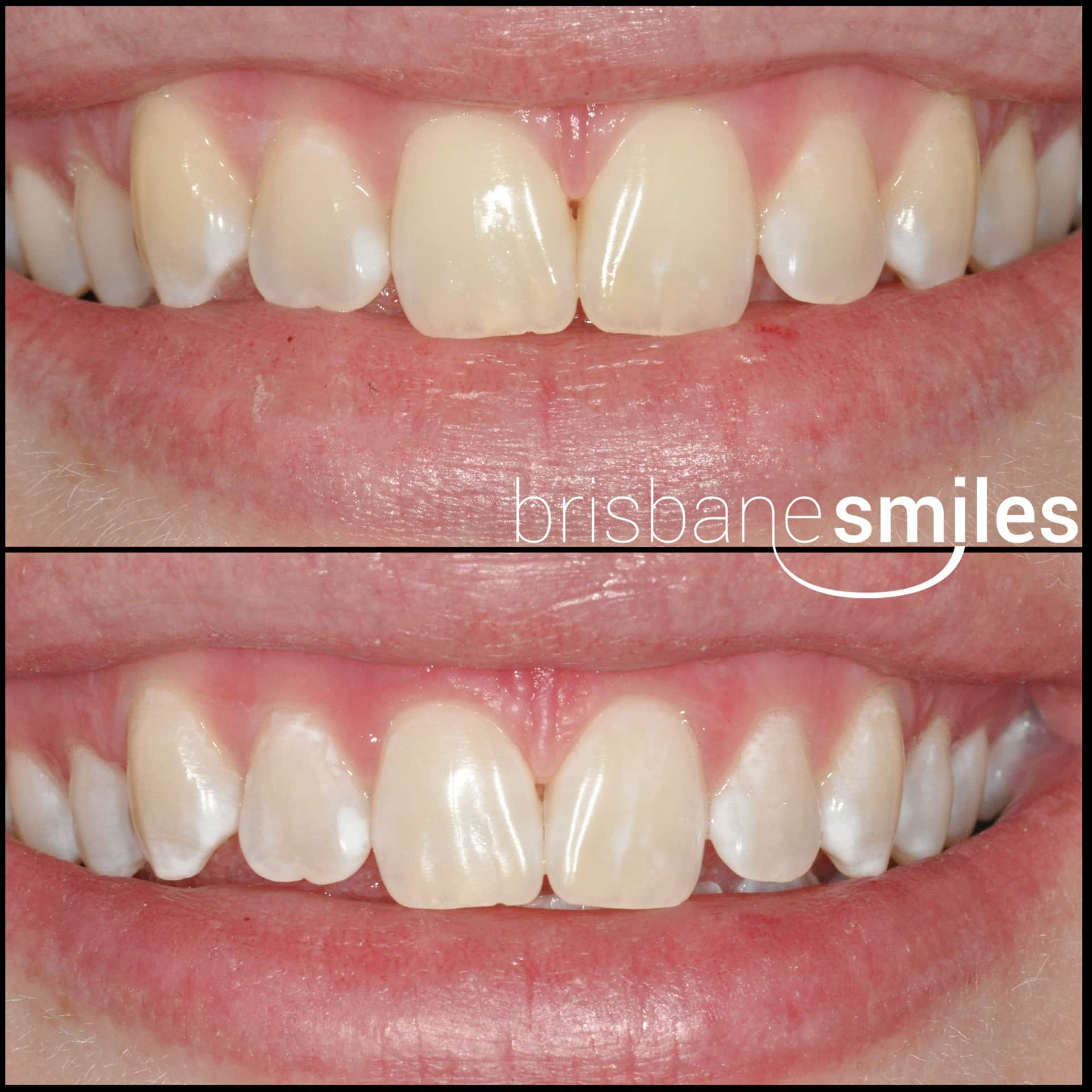 zoom teeth whitening photos before and after