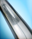stent cover