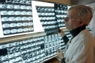 A radiologist examines X-rays of a patient at the Ambroise Pare hospital in Marseille, southern France, April 8, 2008.   REUTERS/Jean-Paul Pelissier (FRANCE) - PM1E4480UAL01