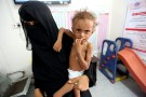 Mother of malnourished Ferial Elias, 2, holds her at a malnutrition treatment ward at al-Thawra hospital in Hodeidah, Yemen November 3, 2018. Picture taken November 3, 2018. REUTERS/Abduljabbar Zeyad - RC17BB71C320