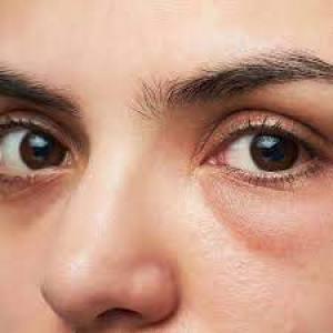 Under Eyes dark circles bags