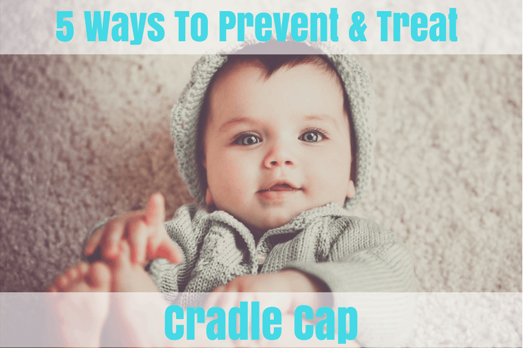 How to Prevent Cradle Cap In Babies