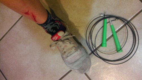View of Cindy's bloody leg with jump rope on floor