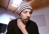 William Pezzullo, sfregiato con l'acido dalla ex chiede aiuto