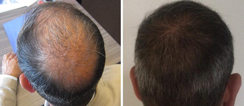 Receding Hairline Cost Transplant