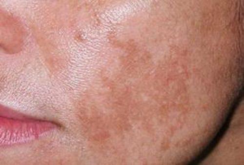 Пигментные пятна на лице - как от них избавиться