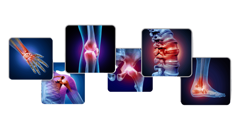 Arthritis Rehabilitation in Occupational Therapy