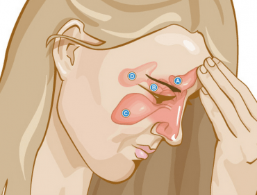 natural-remedies-sinus