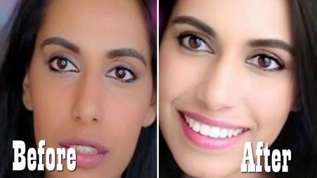 Skin Whitening Treatment in Delhi, Cost and Best Clinic of Laser Treatment