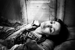 Polina, 37, has just been brought into the hospital severely malnourished and suffering from numerous diseases, including tuberculosis, hepatitis C and HIV.