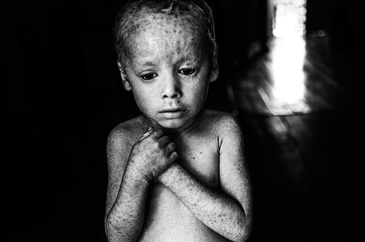 12-07-2014, Alicia Baja- Colonia Aurora, province of Misiones Lucas Techeira is three years old and he was born with ichthyosis, a skin disorder that causes the skin to be dry and cracked. He is locally known as the crystal boy. His father Arnoldo left his job at the tobacco fields when his son was born. 32-year-old Rosana Gaspar, Lucas's mother, says that she always manipulated glyphosate at home to use in her vegetable garden.
