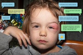 Day 26 : Lars (my son) woke up with a swollen eye. We consulted the Eye doctor via text message.