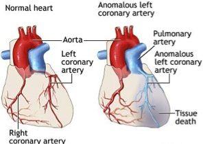 Anormal Koroner Arterler
