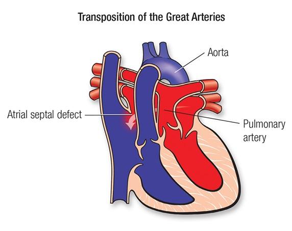 Büyük Arterlerin Transpozisyonu