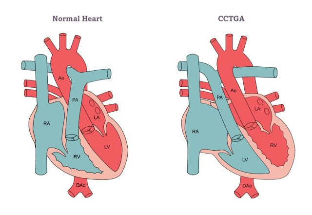 Büyük Arterlerin Doğuştan Düzeltilmiş Transpozisyonu
