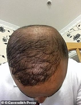 Just over a year after the procedure, Mr Hamid's new hair had already started to thin and fall out