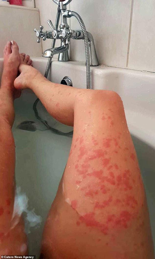 Mother, 33, unrecognisable as skin reactions leave her