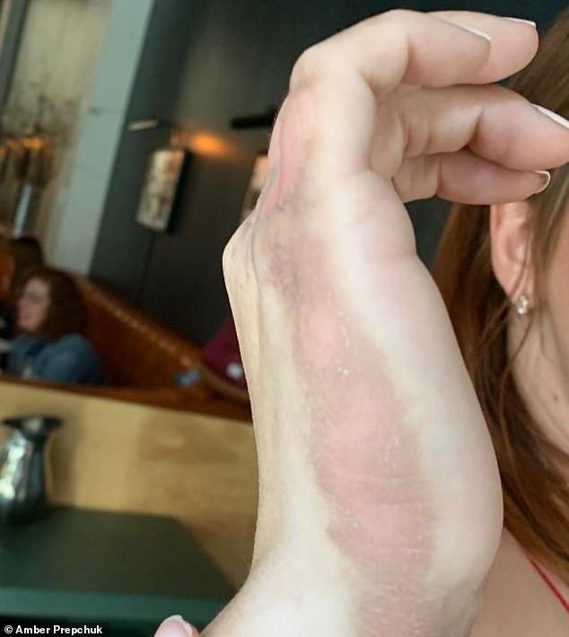 Three weeks later, her hand scars are still severe. Other parts of her body that were splattered with sprinklings of lime juice are also damaged - including two hand-shaped marks on her back, where she believes she placed her hands while in the sun, even after rinsing them