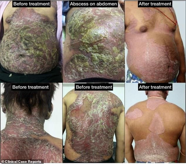 The severity of the first patient's psoriasis plummeted from 57.6 in 2017 when he sought help, to just 11.3 after taking six different remedies