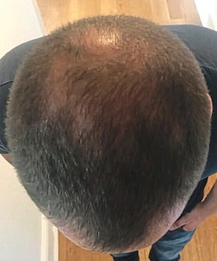 """'Four months after the procedure, I visited my mum and almost the first thing she said was, """"You've grown more hair,"""" ' Chris says"""