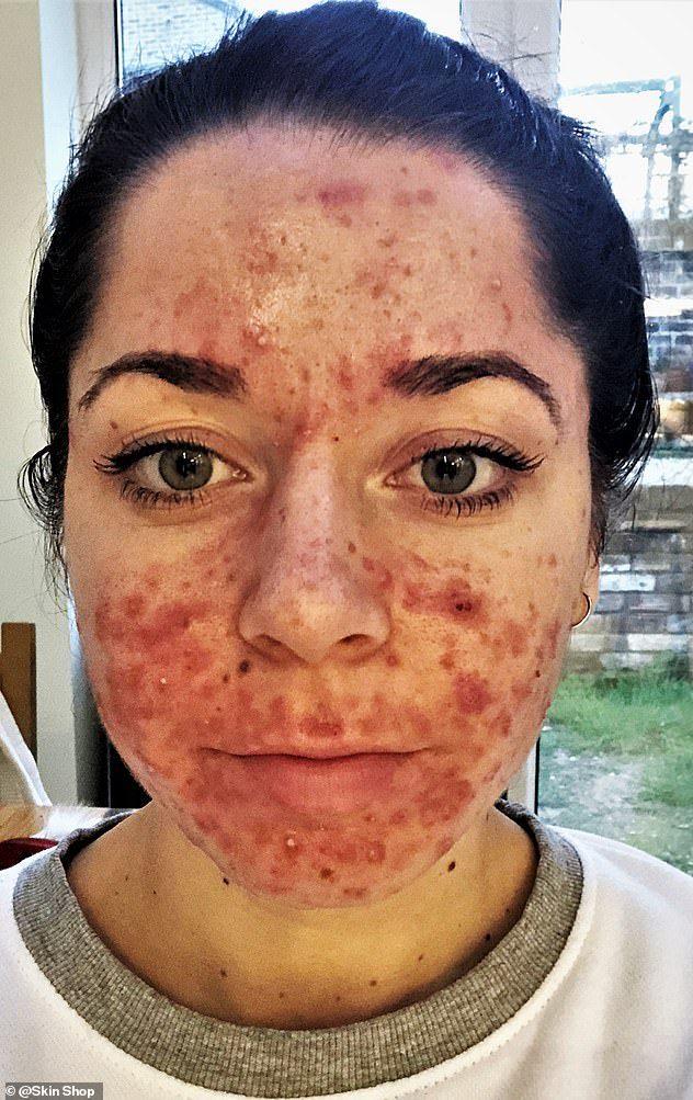 Miss Keel has suffered with 'angry cystic acne' since the age of 12 which was very 'painful and sore' and left her 'in a very low and dark place'