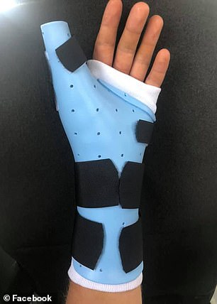 Adkins underwent the operation on August 20 at the University of Michigan Hospital, removing the second toe on his left side, and using it to reconstruct a thumb
