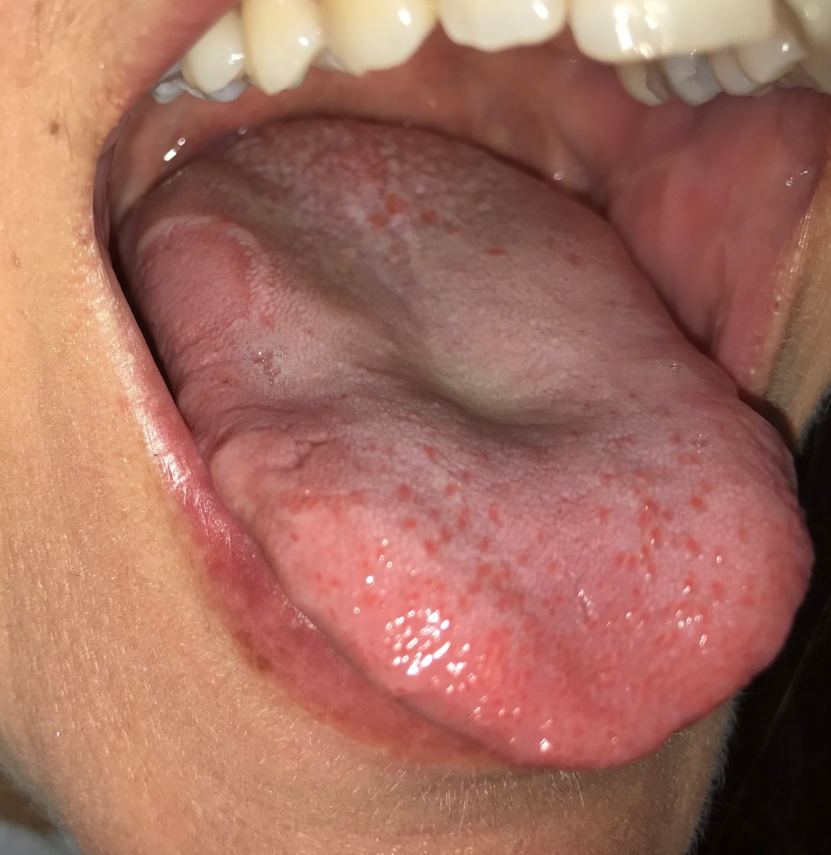 Professor Tim Spector, who runs the ZOE Covid Symptom Study app, warned he is seeing a rise in the number of people with 'Covid tongue'