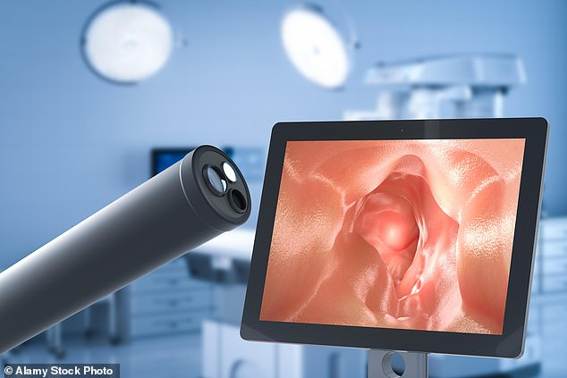 Relief at hand:The portable LumenEye, which is currently being used in six NHS hospitals, may replace sigmoidoscopies