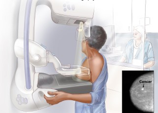 The Nyeri County Government, Ministry of Health's National Cancer Control Program (NCCP) and GE Healthcare have launched a Mammography screening campaign across Nyeri County to promote early detection of breast cancer.