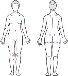 豊胸バッグを入れている人は、線維性筋痛症になりやすいのか?