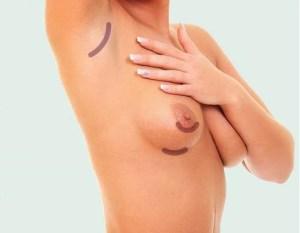 豊胸バッグ除去のアプローチ