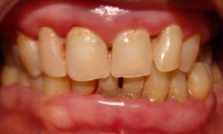 Chronic Mouth Breathing And Its Effect On Your Teeth And