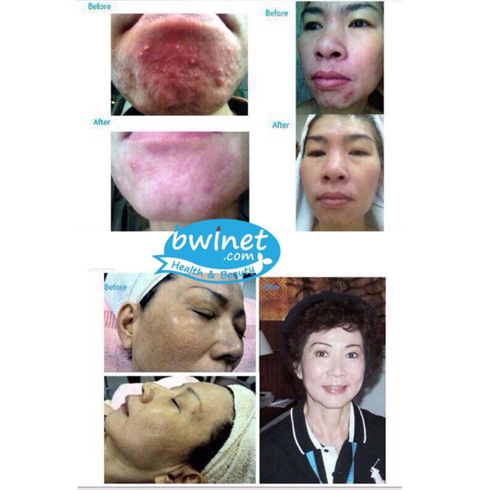 bwlnet-testimoni-taiwan1