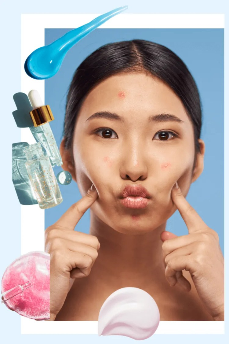 How To Get Rid Of Acne Scars: Home Remedies That Work